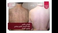المجلة الطبية العلاج بالليزر علاج حب الشباب البهاء  سرطان الجلد الصلع الوراثى الفياجرا المزوره