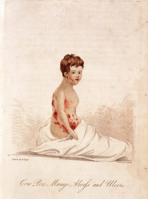E. Pugh and T. Annie, Cow Pox, Mange, Abcess and Ulcers, (1805), Courtesy of Wellcome Collection