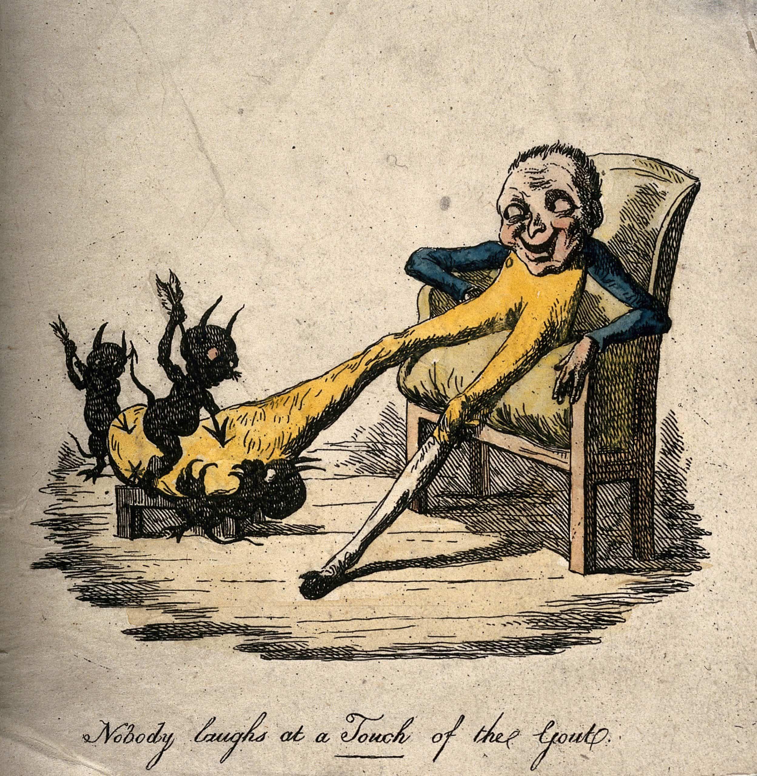 Gout: The Disease of Kings