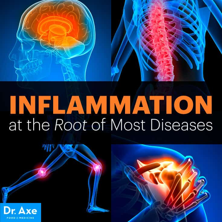 Inflammation at the Root of Most Diseases Title