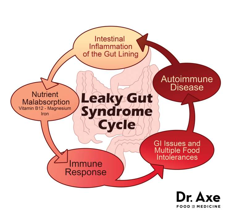 leaky gut cycle chart