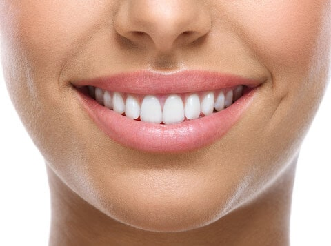 white teeth, woman's smile