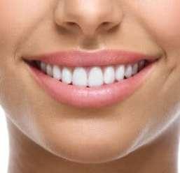 closeup of smile