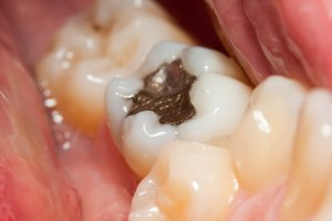 Macro of a tooth with amalgam filling