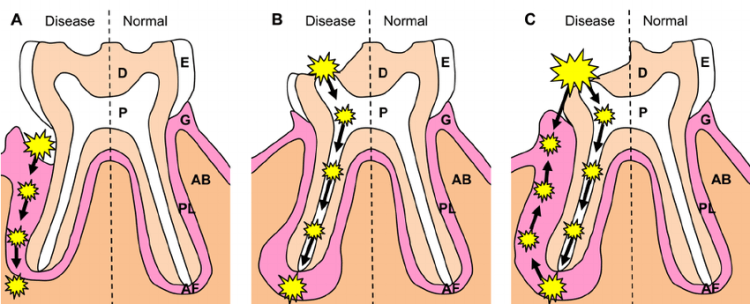 periodontal lesions release pathogens into blood circulation