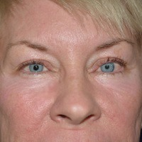 eyelid lift after
