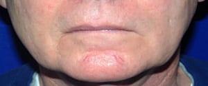 lip procedure