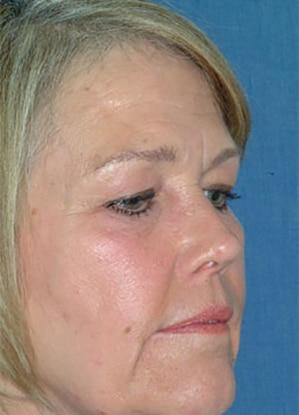 facial procedure