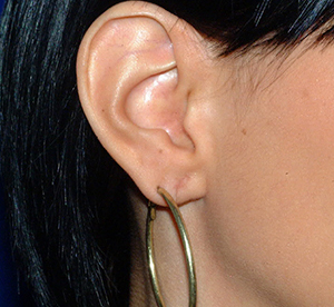 ear gauging reshaping