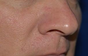 Laser procedure after