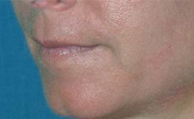 lip enhancement before