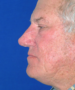 Nose reshaping after