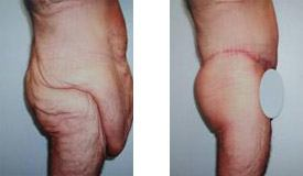 Before-and-After-Abdominoplasty