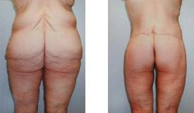 Before-and-After-Abdominoplasty-