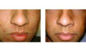 Before-and-After-Acne-Treatment