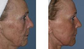 Before-and-After-Eyelid-Lift