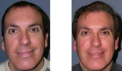 Before-and-After-Hair-Transplantation