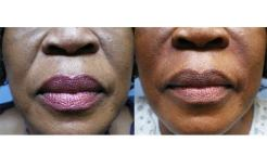 Before-and-After-Injectable-Filler-Therapy