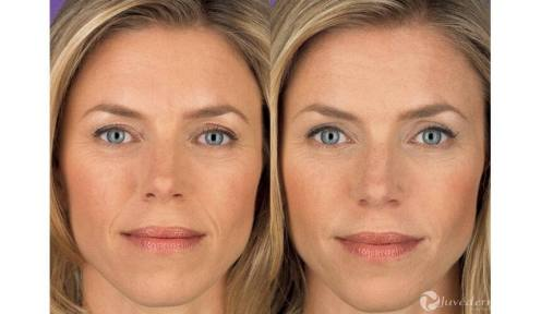 Injectables Before and After Pictures Indianapolis