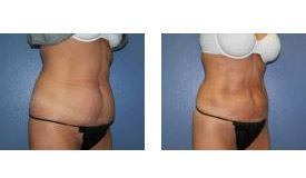 Before-and-After-Liposuction
