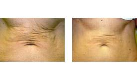 Before-and-After-Ultrasound-Therapy
