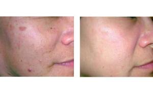 Dr Chernoff Indianapolis Laser Skin Rejuvenation Before After