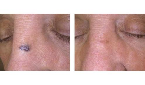 Dr Chernoff Indianapolis Laser Skin Therapy Before After