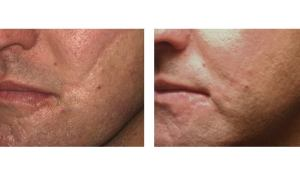 Dr Chernoff Indianapolis Scar Therapy Before After