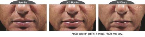 nasolabial b&a_Patient 1