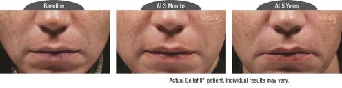 nasolabial b&a_Patient 2