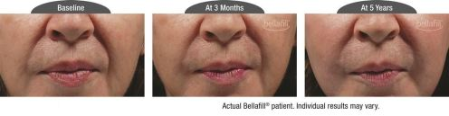 nasolabial b&a_Patient 6
