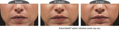 nasolabial b&a_Patient 7