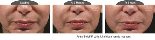 nasolabial b&a_Patient 8