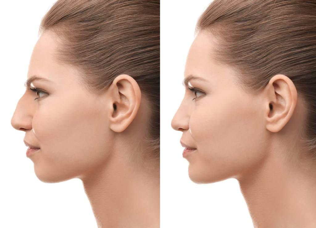 , Rhinoplasty (Nose Job)