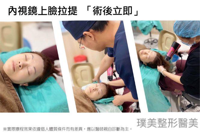 -內視鏡上臉拉提-手術-洗頭-2-1417x945