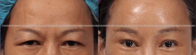 微創提眉、整型外科醫師推薦、台北整型診所推薦、提眉手術價格、內視鏡提眉手術-1.png