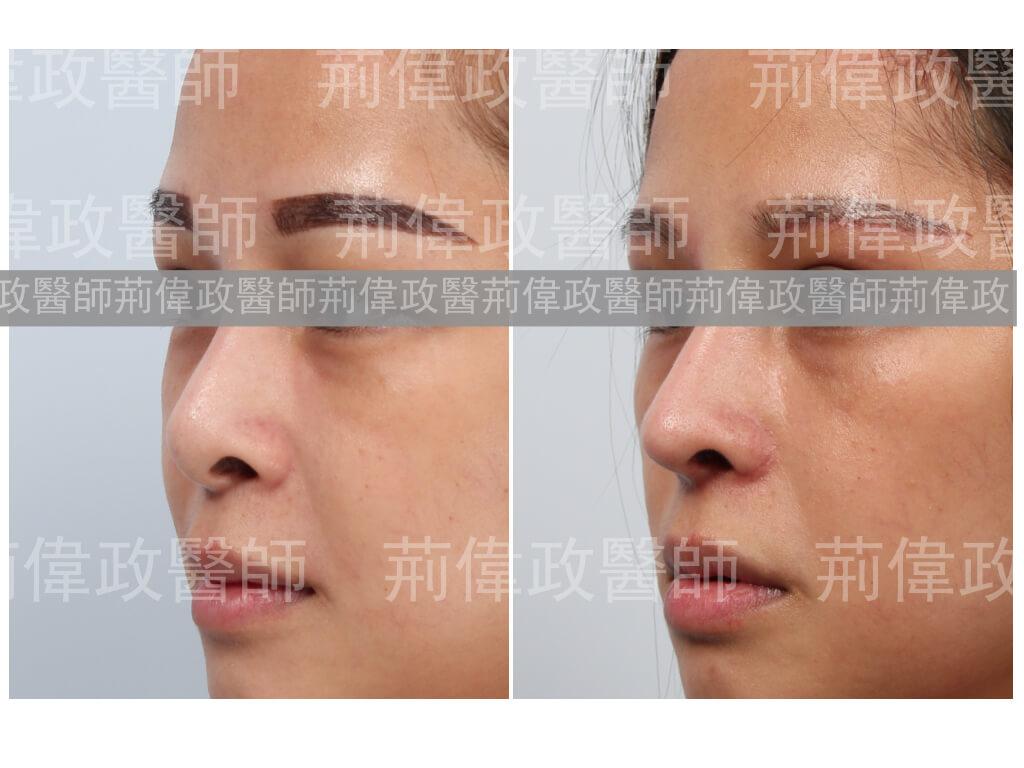 荊偉政醫師、極緻醫美、注射隆鼻後遺症、隆鼻手術過程、隆鼻恢復過程、隆鼻多久後恢復自然、隆鼻恢復期、微整隆鼻、玻尿酸