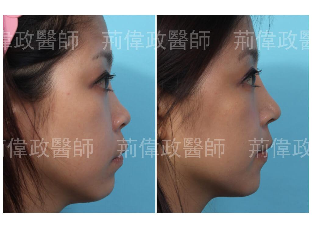 荊偉政醫師、隆鼻前後對比、注射隆鼻後遺症、隆鼻手術過程、隆鼻失敗、gore tex 台灣、台北台中台南、鼻整形ptt、山根