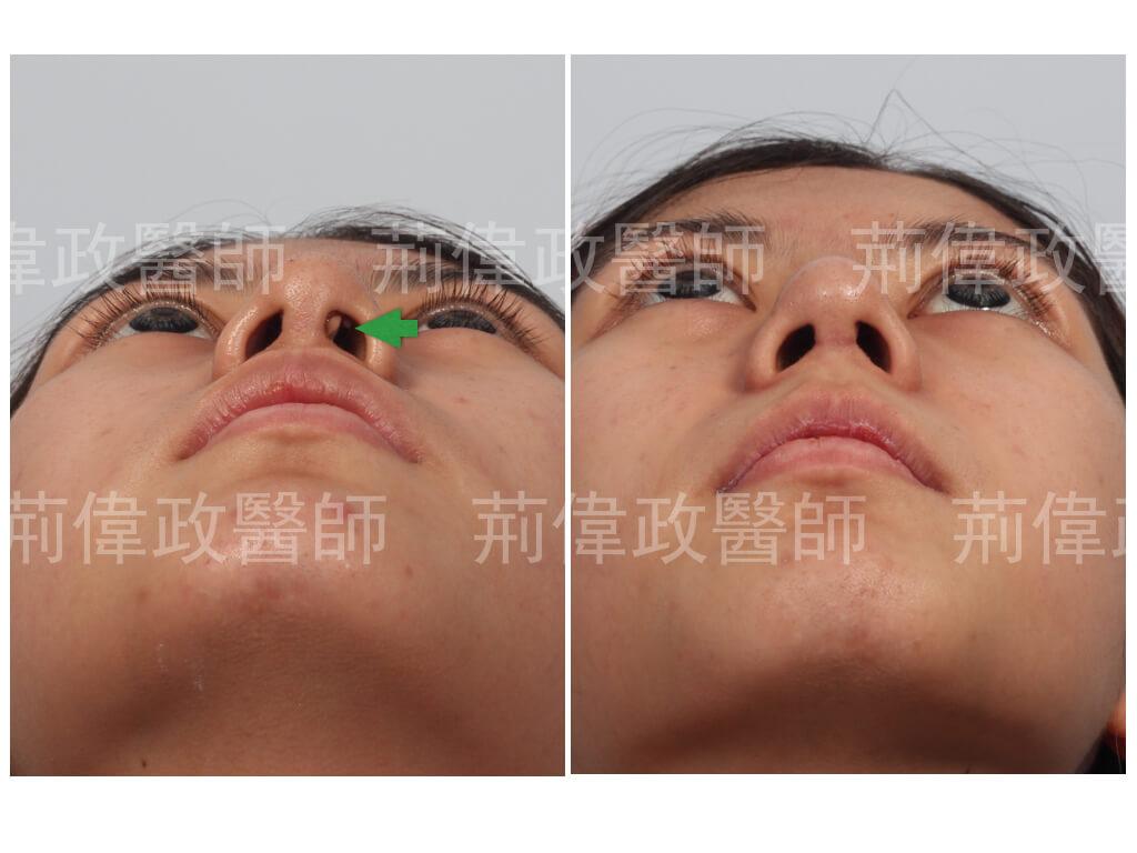 荊醫師、極緻醫美、隆鼻手術恢復時間、隆鼻價格、軟骨隆鼻後遺症、隆鼻前後對比、注射隆鼻後遺症、隆鼻失敗、矽膠隆鼻能保持多久