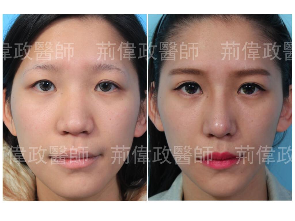 鼻整形、隆鼻手術過程、隆鼻失敗、矽膠隆鼻能保持多久、隆鼻方法、台北台中台南、鼻整形ptt、山根、整形外科醫師推薦