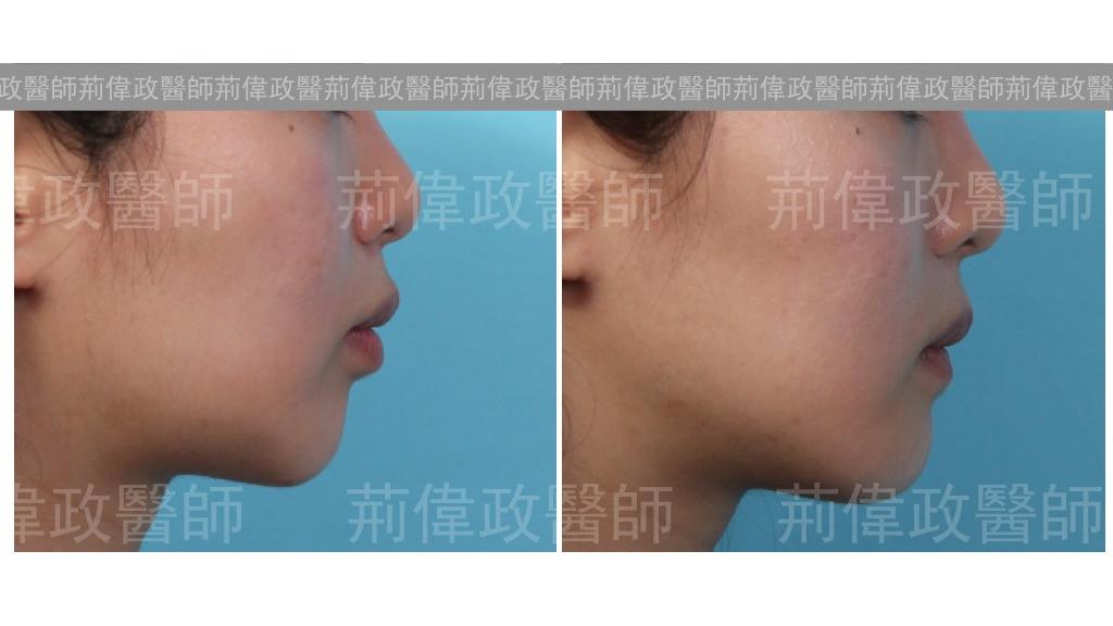 下巴手術經典案例-5