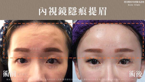 03內視鏡提眉_拉皮頁面BA-改善皺眉紋、抬頭紋-1107x630