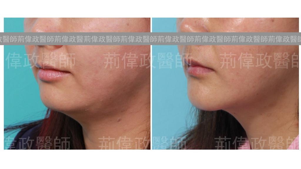 人工骨下巴|下巴抽脂手術,能明顯改善雙下巴