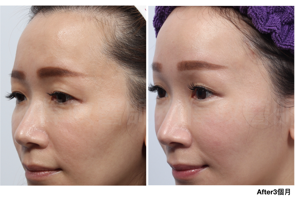 3d微創拉皮、拉提手術推薦、台北台中台南權威醫師推薦、初老現象