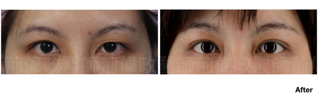 荊醫師、雙眼皮ptt、割雙眼皮推薦醫師、台北雙眼皮權威、台北雙眼皮手術推薦.jpeg