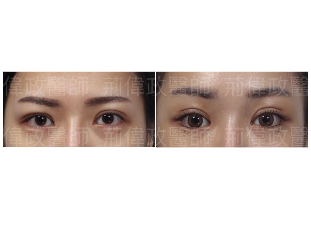 荊醫師、極緻醫美、眼整形權威、雙眼皮ptt、割雙眼皮推薦醫師、台北雙眼皮權威、雙眼皮單眼皮、縫雙眼皮、割雙眼皮.jpeg