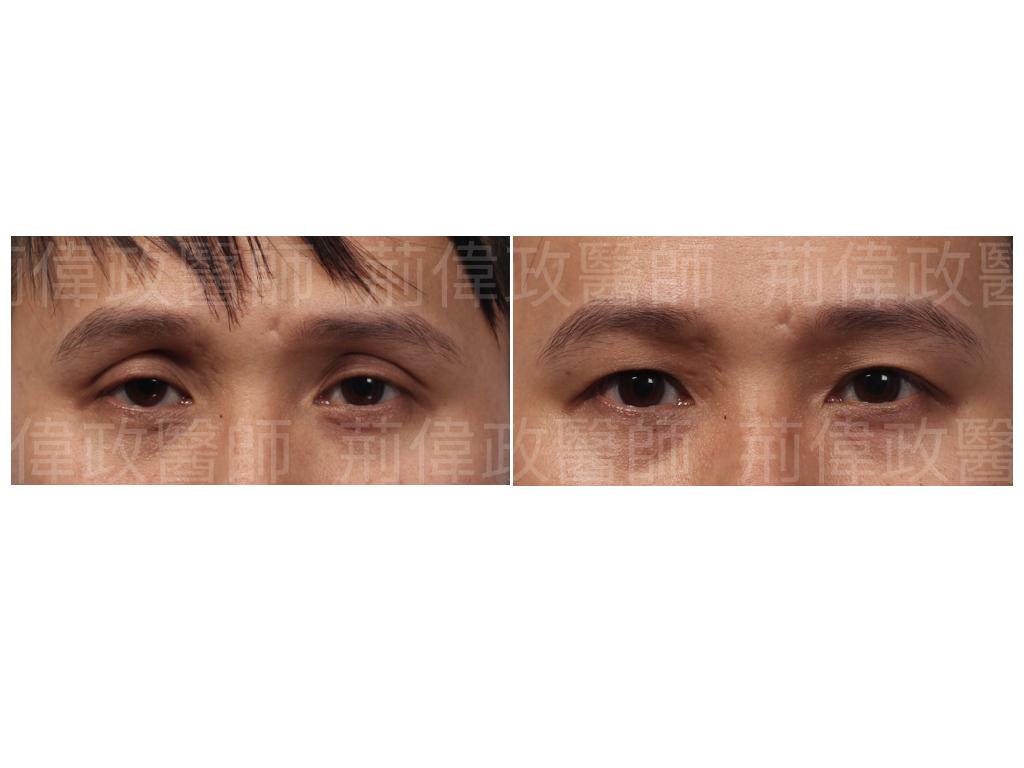 眼整形、眼整形權威、眼整形推薦、眼整形外科、雙眼皮手術費用、雙眼皮手術推薦、整形外科醫師推薦、台北有名整型診所推薦、雙眼皮ptt、割雙眼皮推薦醫師.jpeg