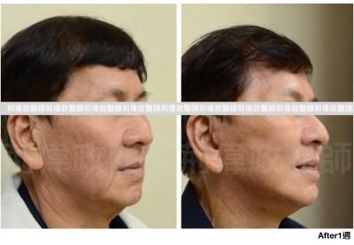 提眉ptt、提眉肌手術費用、直接提眉、微創提眉費用.jpeg