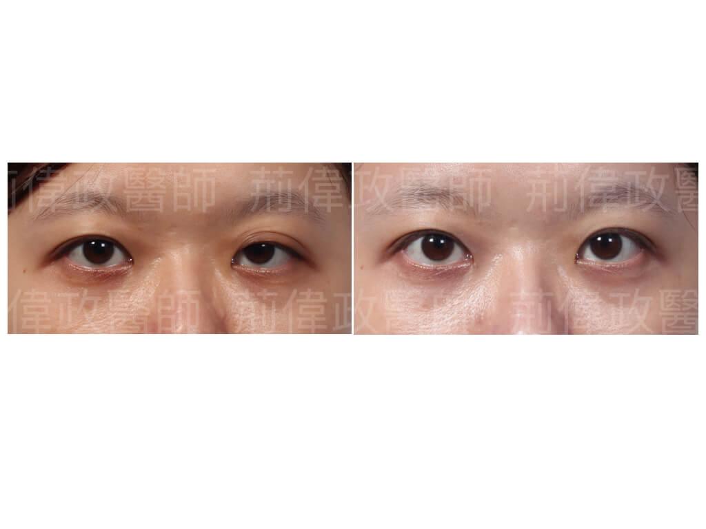 提眼瞼肌、眼瞼肌無力、眼瞼肌無力價錢、眼瞼肌無力ptt、提眼肌運動、提眼肌手術風險、提眼肌手術費用、香港雙眼皮手術價錢、眼瞼肌無力訓練.jpeg