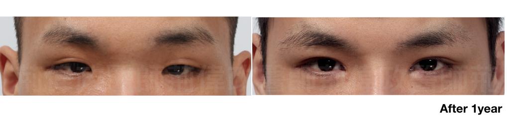 荊醫師、眼瞼肌無力訓練、眼瞼肌無力價錢、眼瞼肌無力ptt、提眼肌運動.jpeg